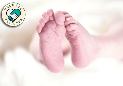 Jaundzimušā vēdera izeja- kam pievērst uzmanību?