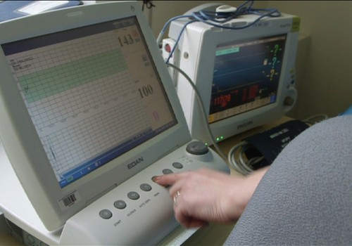 VIDEO: Dzemdības pēc ķeizargrieziena operācijas? Jā, tādas ir iespējamas!