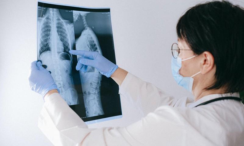 Plaušu vēzis – kā atpazīt, kā apstiprināt?