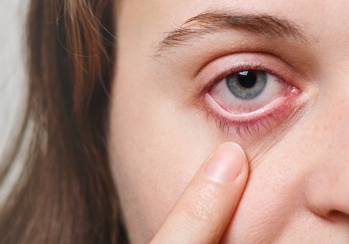 Par ko liecina sarkanas acis un ko iesākt?