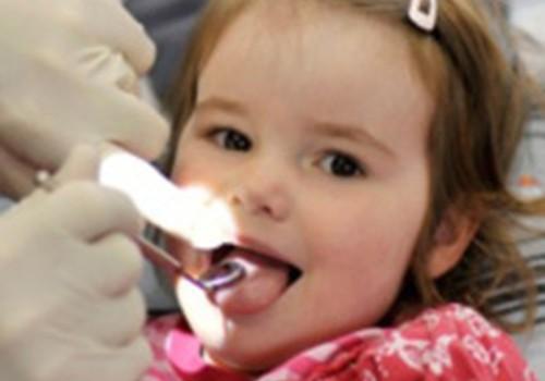 Biežāk uzdotie jautājumi par bērna zobiņiem