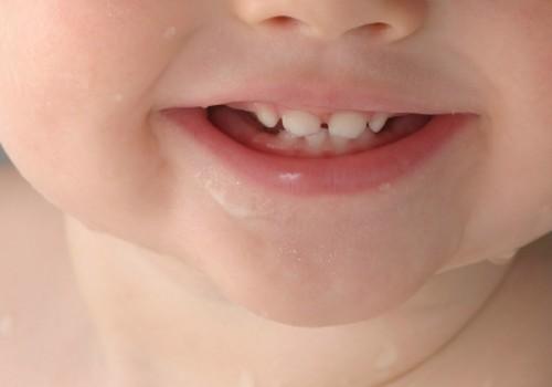 Ak, šie zobi,zobiņi.