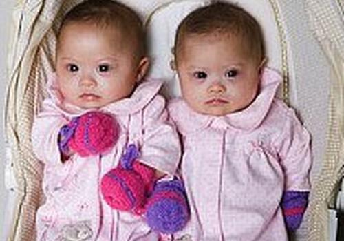 Bērnu slimnīcā priekšlaikus dzimušie dvīnīši varēs gulēt kopā!