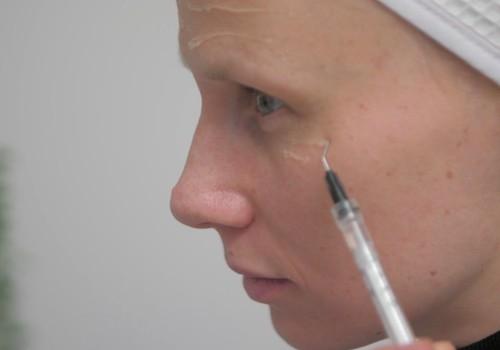 Māmiņu Klubs testē: Fillerina dermokosmētika