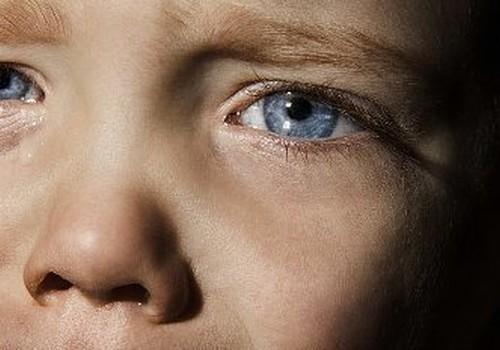 Atklājam, kādas ir izplatītākās acu problēmas bērniem