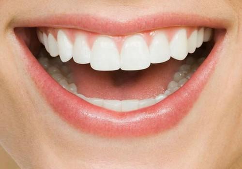 7 produkti, no kuriem izvairīties, ja sapņo par žilbinoši baltu smaidu