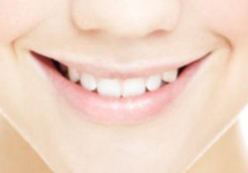 Baltināt vai nebalināt zobus?