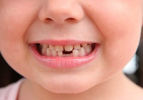 8 triki, kas motivēs bērnu tīrīt zobus!
