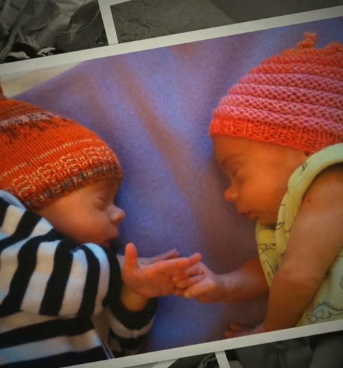 VIDEOciemošanās pie priekšlaikus dzimušu dvīnīšu ģimenes