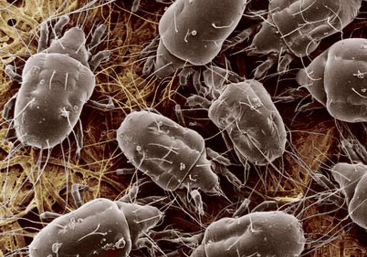 Alerģija no putekļu ērcītēm- jūsu pieredze