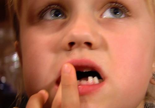Atklāts noslēpums,kur paliek izkritušie bērnu zobiņi
