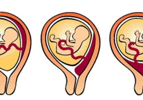 Priekšguļoša placenta: kas tā ir?