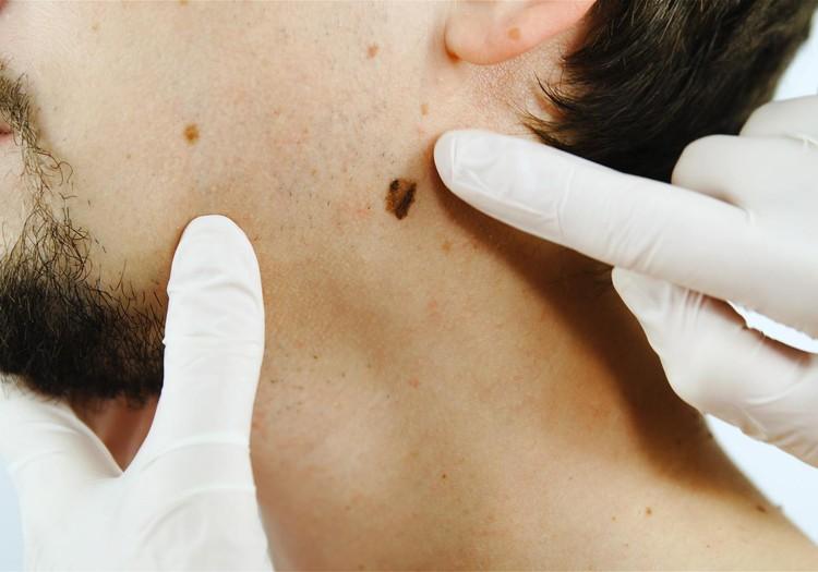 """Dermatologs: """"Ja melanoma tiks atklāta vēlās stadijās, no tās gada laikā nomirs tikpat daudz cilvēku kā no Covid-19."""""""