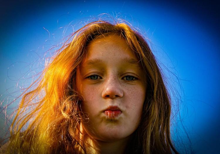 Ieteikumi pusaudžiem: ko darīt ar ādas problēmu numur viens – ar pinnēm?