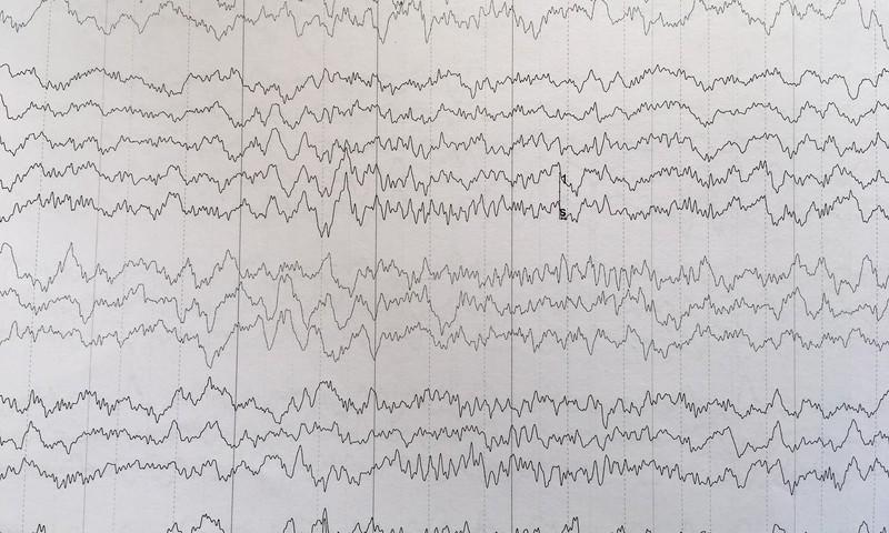 Ko saka Fejiņas miega elektroencefalogrāfijas rezultāti?