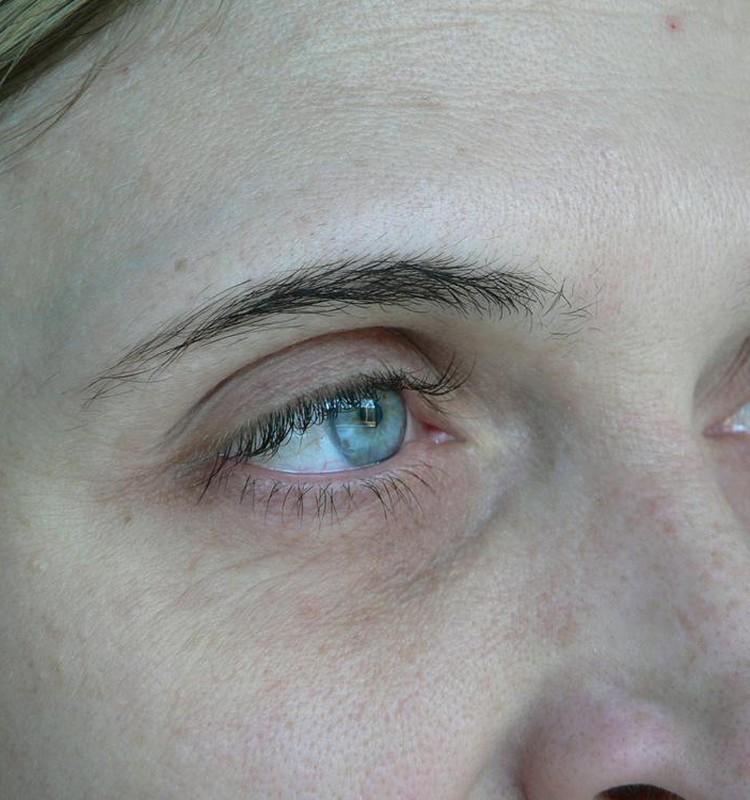 ACIS: pirms un pēc mikropigmentācijas