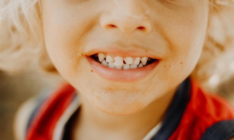 Uzdod savus jautājumus par bērna zobiņiem ortodontam!