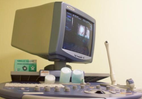 Trīsdimensiju ultrasonogrāfija – mīti un patiesība