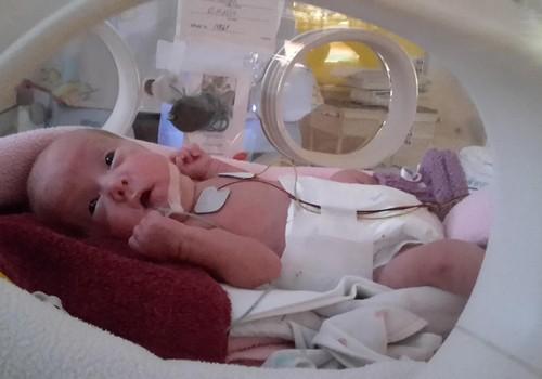 Priekšlaicīgi dzimis mazulītis