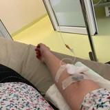 Intravenozās sistēmas 2 nedēļu garumā pēc olnīcu hiperstimulācijas