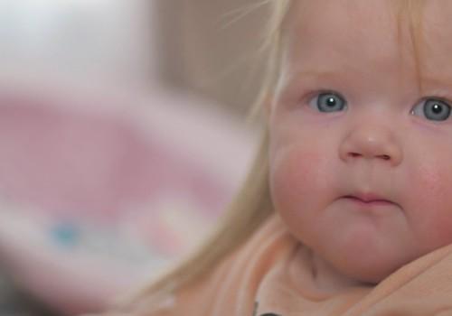 Atopiskais dermatīts skar aptuveni 20-40% no visiem bērniem
